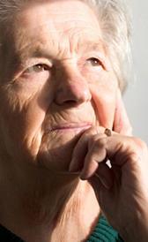 Imagen del Alzheimer