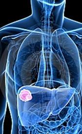 Imagen del cáncer de hígado