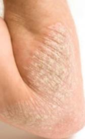 Imagen del eczema