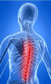 Imagen de la esclerosis múltiple