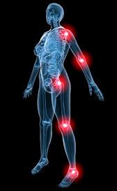 Imagen de la fibromialgia
