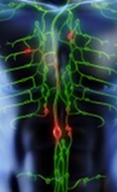Imagen del linfoma de Hodgkin