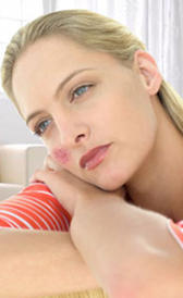 Imagen del lupus