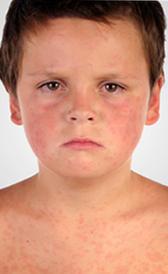 Imagen del sarampión