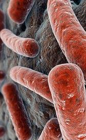 Imagen de la sífilis