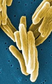 Imagen de la tuberculosis