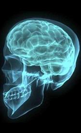 Imagen del tumor cerebral