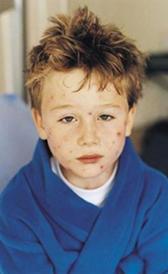 Imagen de la varicela